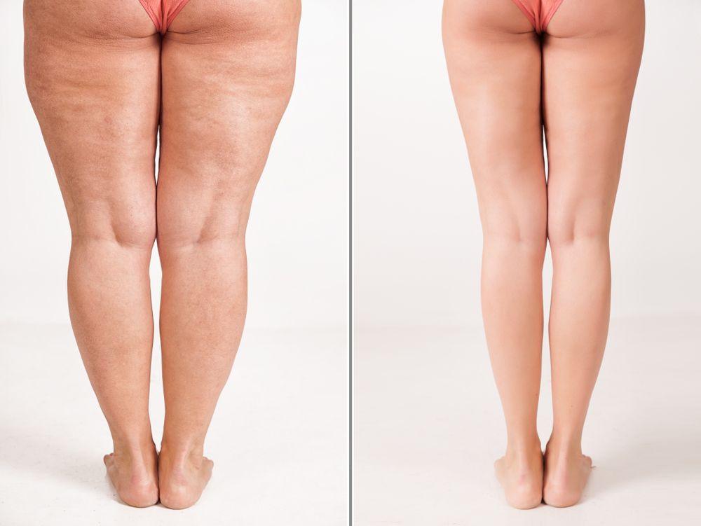 Bacaklarda Estetik Gereksinimine Neden Olan Durumlar Nelerdir