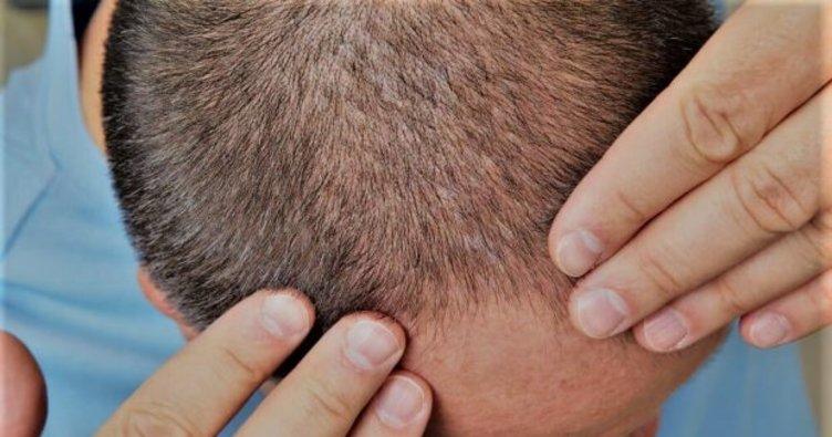 Saç Lazeri Uygulaması ile Saçınıza Yoğunluk Katın