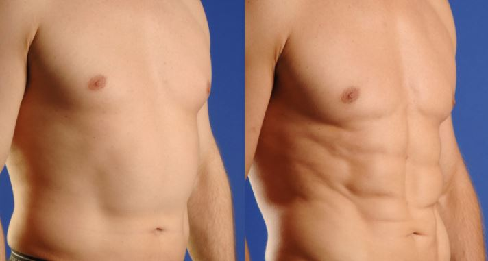 Vaser Liposuction ile Jinekomasti